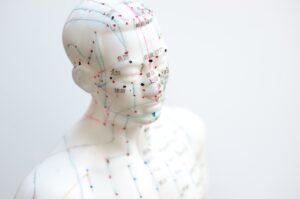 akupunkturpunkte schwangerschaft