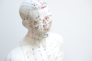 akupunktur geburtsvorbereitung