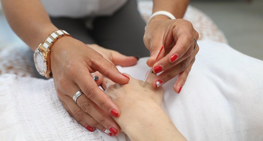 PDA Geburt Erfahrungen & Geburtsvorbereitende Akupunktur